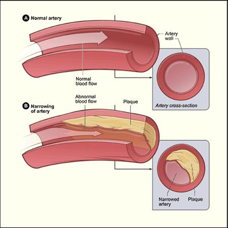 arteries and veins diagram. arteries+and+veins+diagram